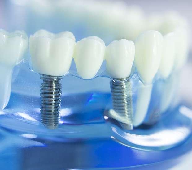 Mamaroneck Dental Implants
