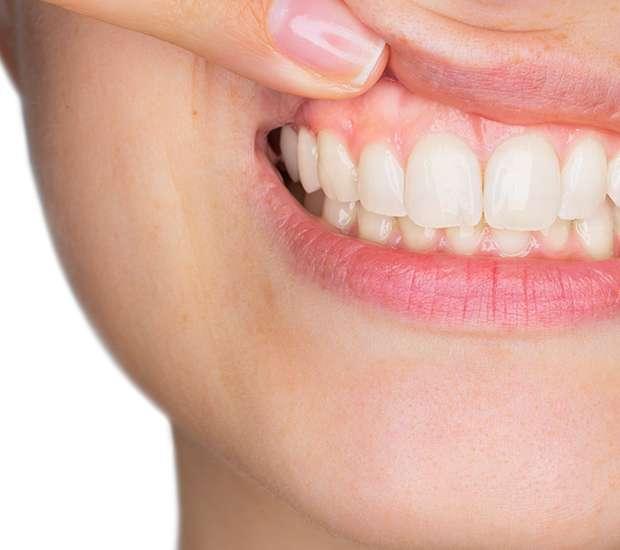 Mamaroneck Gum Disease